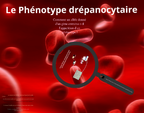 Etude de cas : la drépanocytose